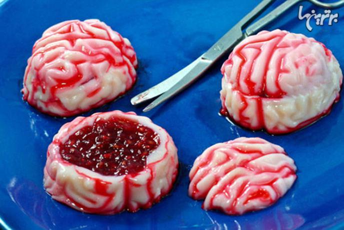 مغز ژلهای