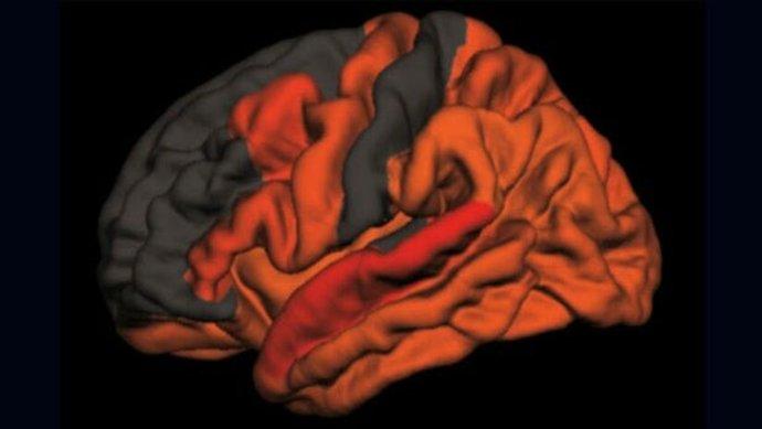 سایههای قرمز و نارنجی مناطقی را در مغز نشان میدهد که حاوی سطوح بالاتری از پروتئینهای سمی مرتبط با کاهش کیفیت خواب هستند